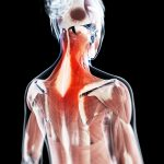 Types of Complex Regional Pain Syndrome or CRPS