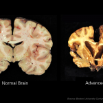 Brain Disease Found 96 Percent of Deceased Pro Football Players