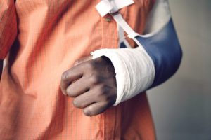 Closeup midsection of a man with broken arm in cast
